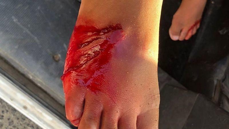 Un tiburón ataca a otro niño de 6 años en una playa española: 20 puntos de sutura